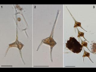 Neoceratium candelabrum