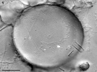 actinocyclus_tenuissimus