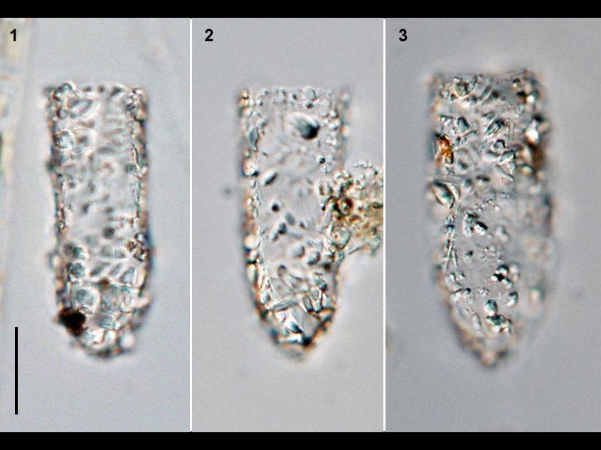 Tintinnopsis beroidea