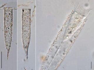 Tintinnopsis radix