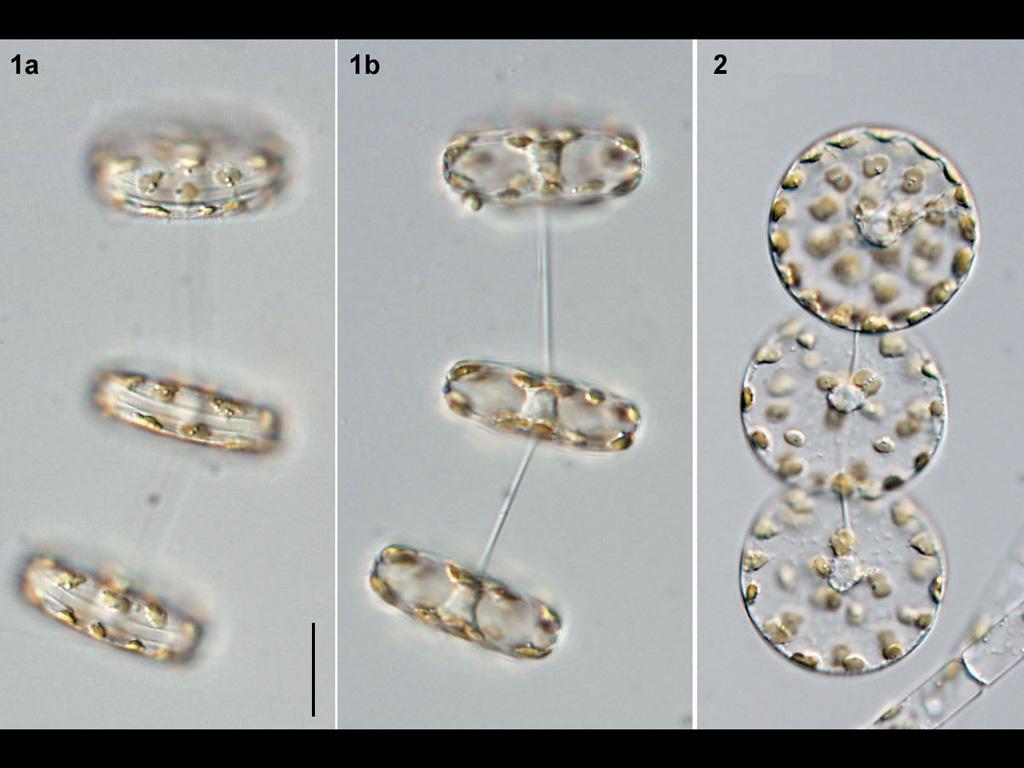 Thalassiosira rotula
