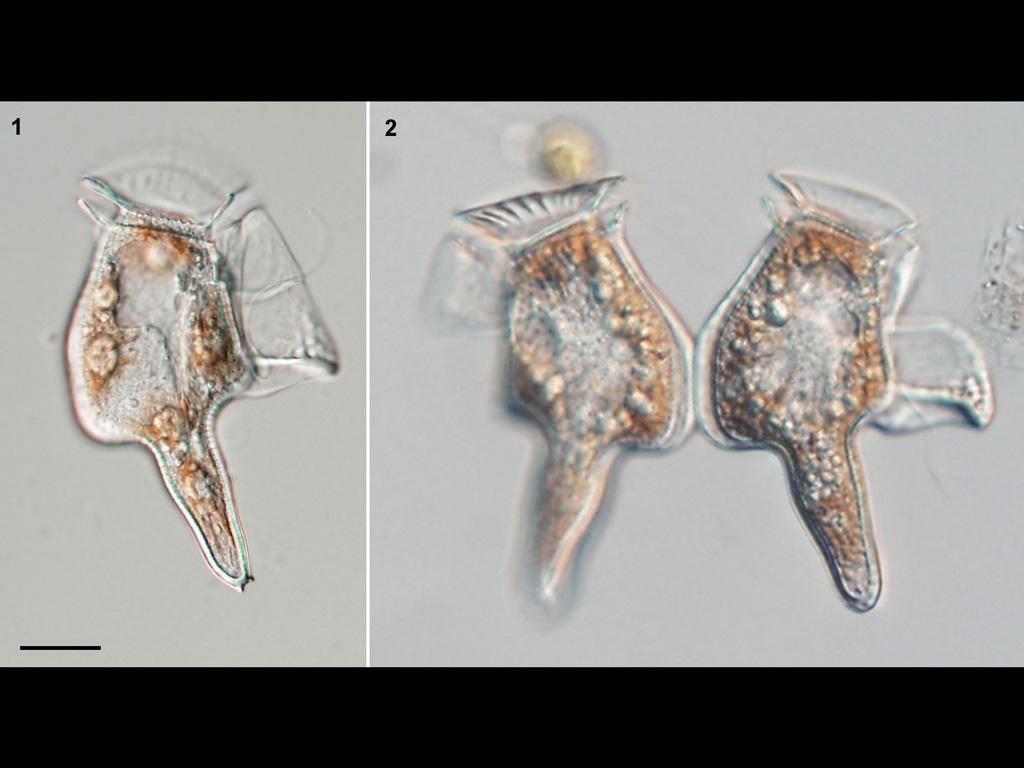 Dinophysis caudata