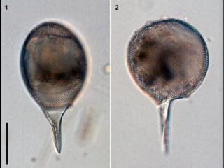 Protocystis xiphodon