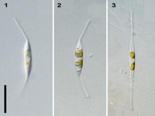 Ceratoneis closterium
